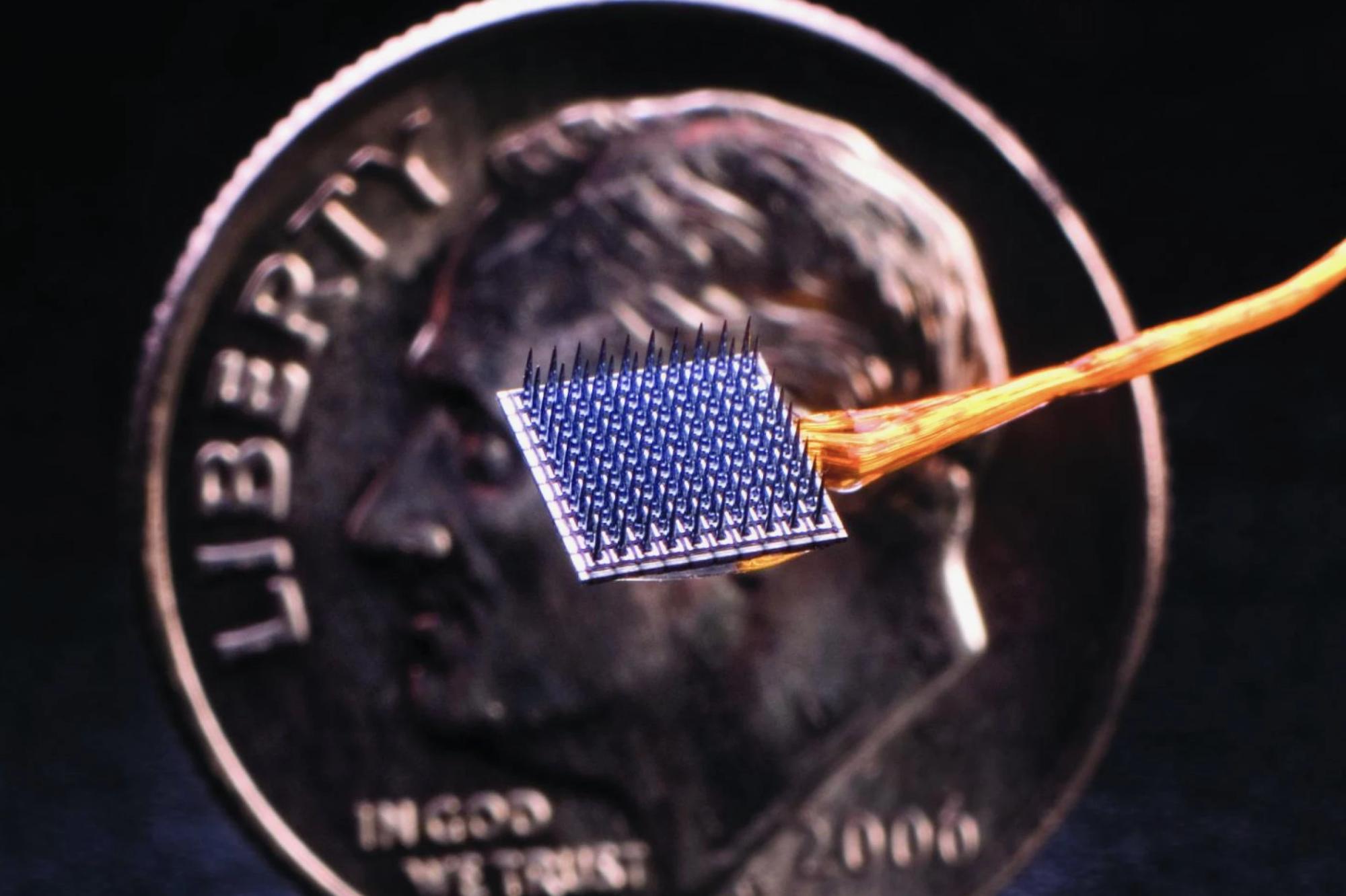 Thử nghiệm thành công chip gắn não có thể nhận biết và làm giảm cơn đau trong tích tắc